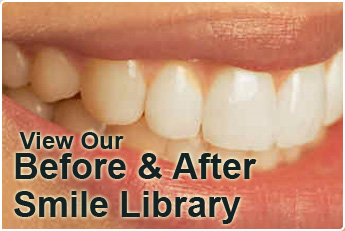 Click here to view our smile library